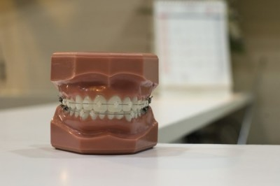 What Food Could Negatively Affect Your Dental Veneer?